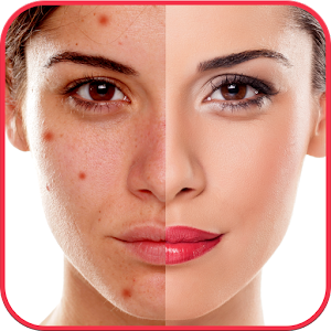 Descargar app Blemishes Remover You Makeup